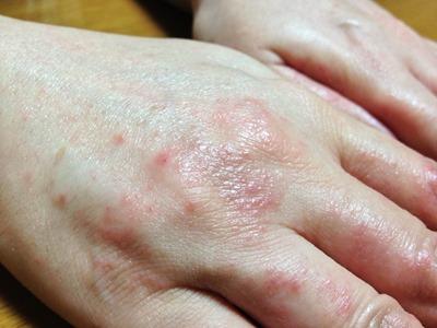 私の手荒れの記録 | 主婦湿疹体験記 | 手荒れ百科